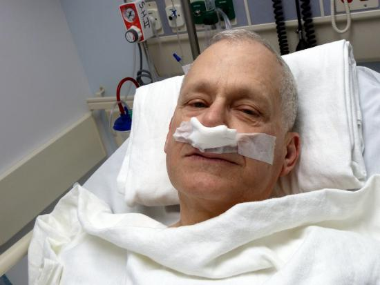 Patient Recovering From Rhinoplasty Procedure